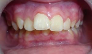 Прогения и прогнатия верхней или нижней челюсти: фото и способы исправления прикуса
