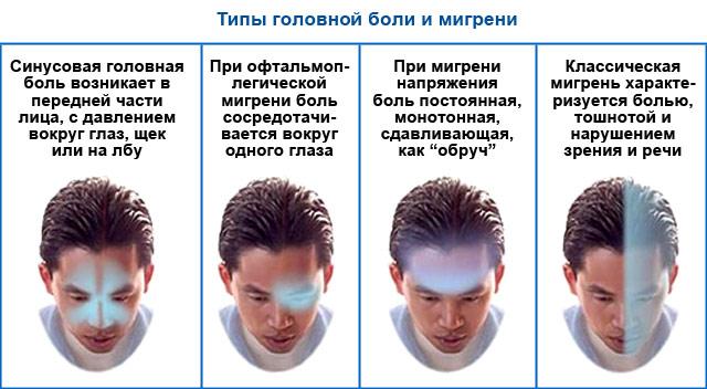 Подробно о мигрени: признаки заболевания и способы лечения