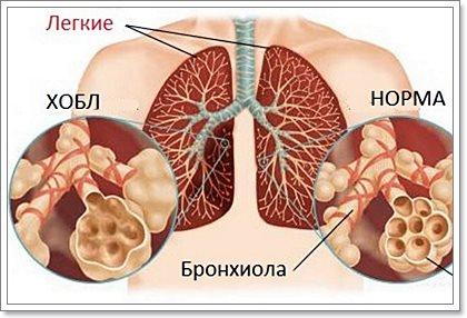 Хроническое обструктивное заболевание легких (ХОБЛ)