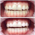 Исправление прикуса и выравнивание зубов силиконовой каппой: фото до и после у детей и взрослых