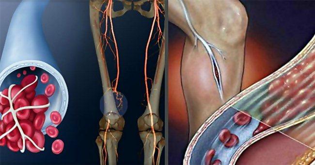 Симптомы тромбоза: тромб в сердце, в легких, при варикозе