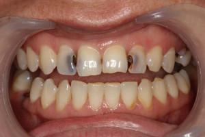 Кариес в стоматологии: причины, симптомы и стадии развития с фото, лечение зубов