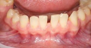 Строение и особенности слизистой оболочки полости рта, элементы поражения и профилактика заболеваний