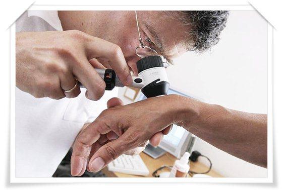 Симптомы и лечение разных видов псориаза, диета