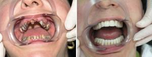 Виды и типы несъемных зубных протезов нового поколения: какой лучше поставить?
