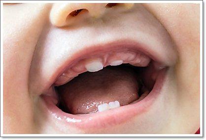 У ребёнка режутся зубы, что делать? Признаки и советы родителям