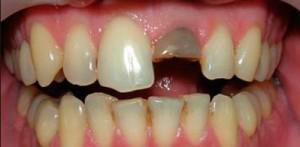 Симптомы и особенности лечения ушиба зуба у ребенка, профилактика травм