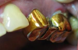 Что такое зубная коронка и в каких случаях показана ее установка: виды с фото, этапы протезирования, срок службы