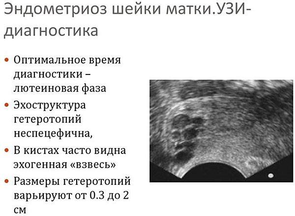 Эндометриоз матки: диагностика и лечение, медицина и народные средства, видео