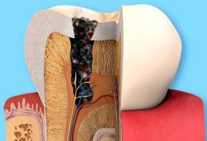 Глубокий множественный зубной кариес: симптомы с фото, лечение генерализованного поражения и возможные осложнения