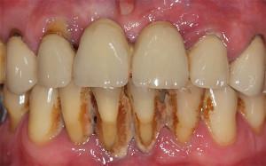 Очищение зубов от никотина влияние курения, избавление от сигаретного налета и отбеливание в домашних условиях