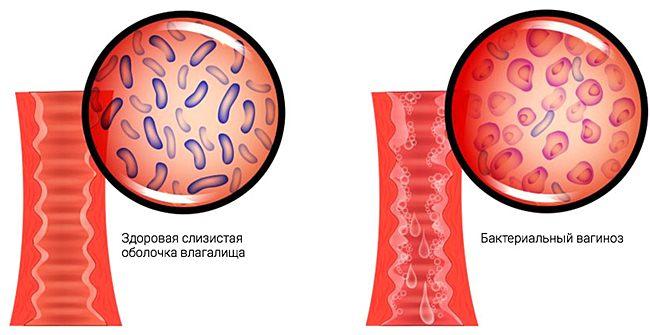 Признаки и лечение воспаления при бактериальном вагинозе