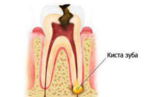 Киста на корне зуба: симптомы, удаление (резекция), терапевтическое лечение в домашних условиях