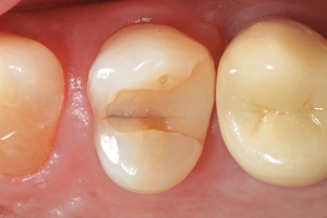 Как пломбируют зуб в стоматологии и можно ли поставить пломбу в домашних условиях самому: видео-советы