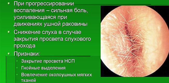 Отит наружного уха: диагностика и способы лечения