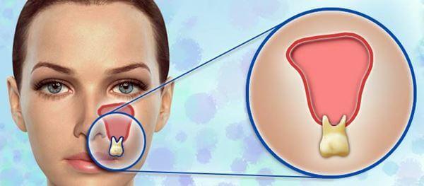Одонтогенный гайморит симптомы и лечение