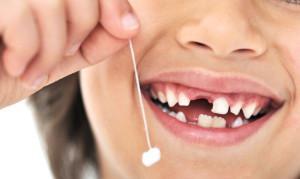 Показания к удалению молочных зубов у детей и последствия, больно ли вырывать?