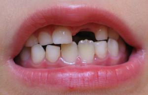 Когда начинают выпадать зубы у детей: схема, сроки и порядок смены молочных единиц на постоянные с таблицей