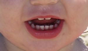 Сколько молочных зубов должно быть у ребенка в возрасте 1 года и старше?
