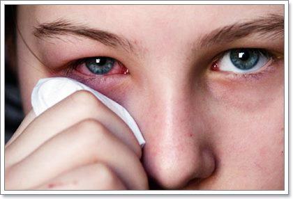 Про острый конъюнктивит: симптомы и лечение