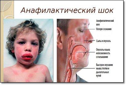 Анафилактический шок: провоцирующие факторы, первая помощь, лекарства