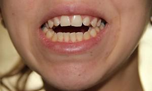 Причины возникновения и лечение бокового и переднего открытого прикуса у взрослых и детей с фото до и после