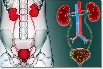Домашние средства от инфекций мочевыводящих путей
