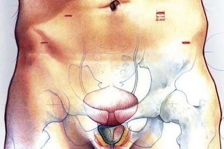 Мочевой пузырь и простата