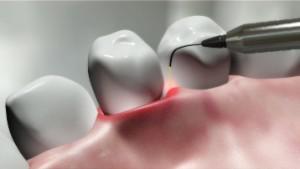 Симптомы перикоронарита зуба мудрости с фото и способы лечения острой формы заболевания