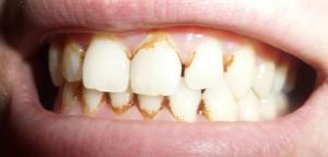 Интересные стоматологические мифы и факты: от чего зависит здоровье человеческих зубов?