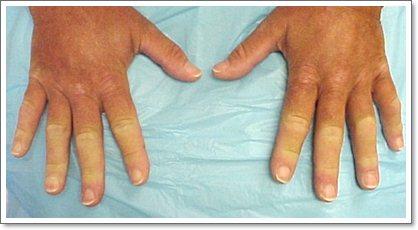 Болезнь Рейно (синдром) признаки и лечение сосудов конечностей