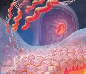 Медикамент укрепляет защитные возможности слизистой