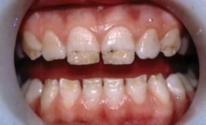 Виды гипоплазии эмали у детей с фото: способы лечения зубов Гетчинсона и других ее проявлений