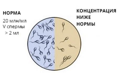 Концентрация сперматозоидов в сперме