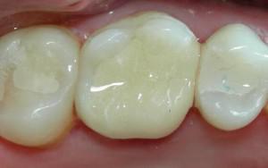 Чем и как пломбируют зубы: световые (фотополимерные), химические и другие виды пломб в стоматологии