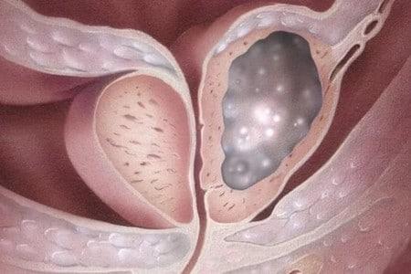 Простата с раком
