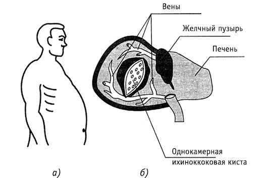 Эхинококкоз печени: симптомы заражения и способы борьбы