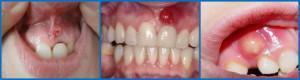 Что делать, если на десне над зубом появилась шишка: фото и лечение гнойных и твердых уплотнений