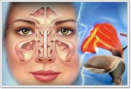 Киста гайморовой пазухи: диагностика и способы лечения