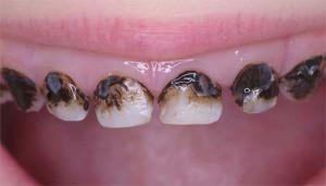 Диагностика начального кариеса и лечение зубов в стадии белого пятна на эмали