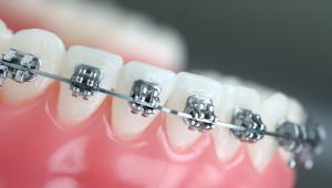 Сколько времени после установки брекет-системы могут болеть зубы, как справиться с неприятными ощущениями?