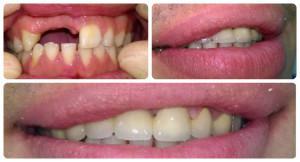 Восстановление передних зубов за один день метод экспресс-протезирования