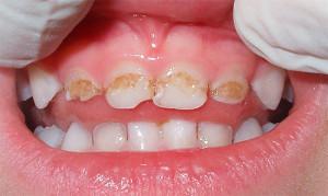 Сколько молочных зубов должно быть у ребенка в 2 года, как происходит процесс прорезывания?