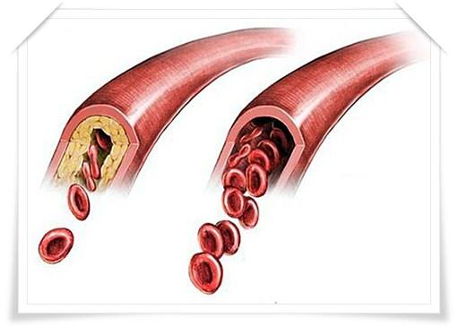Атеросклероз профилактика, лечение, питание