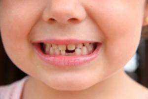 Что делать, если выпал первый молочный зуб у ребенка, можно ли его хранить: обычаи и приметы