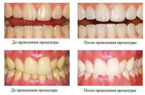 Покрытие для зубов Фторлак: состав и инструкция по применению средства в домашних условиях и у стоматолога