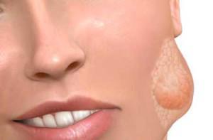 Подчелюстные слюнные железы симптомы воспаления с фото и лечение сиалоаденита