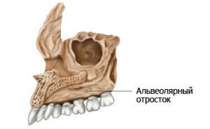 Альвеолярный отросток верхней и нижней челюсти и его перелом: что это такое?