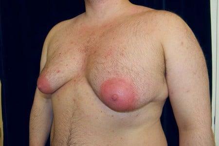 Мужчина с большой грудью