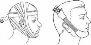 Понятие и разновидности челюстно-лицевых аппаратов в ортопедии, технология их изготовления